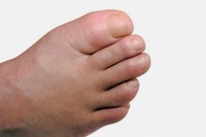 kaki bengkak saat hamil